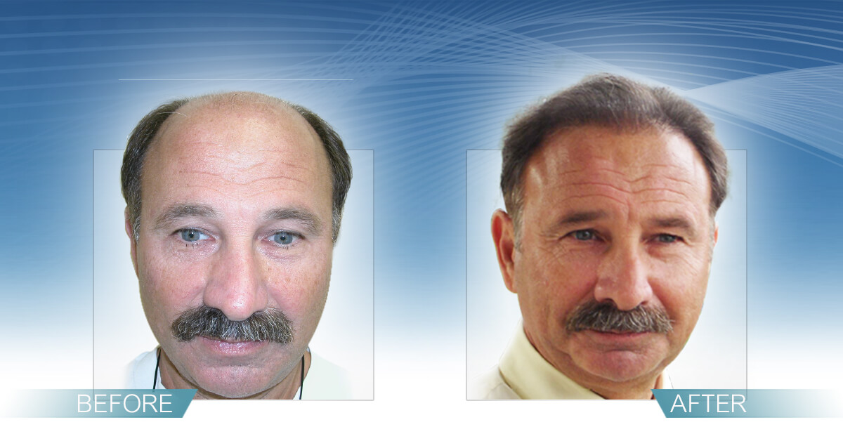 Skin & Hair Doc Before After Hair Transplant Slide 1