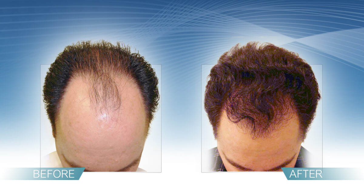 Skin & Hair Doc Before After Hair Transplant Slide 2
