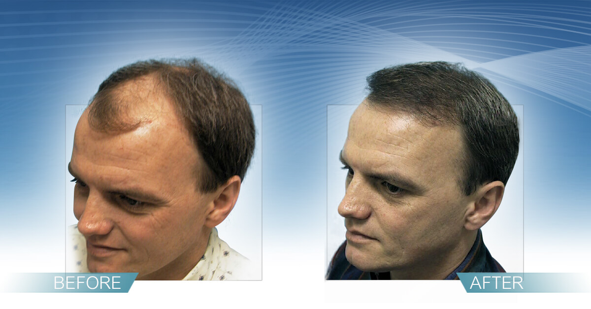 Skin & Hair Doc Before After Hair Transplant Slide 3