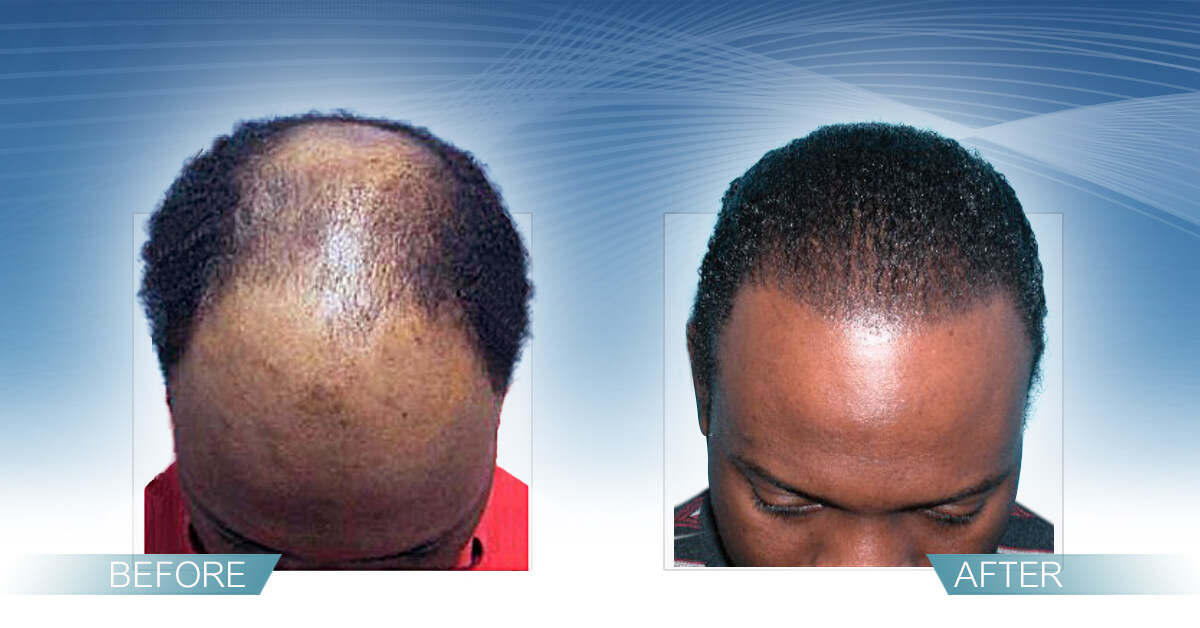 Skin & Hair Doc Before After Hair Transplant Slide 4