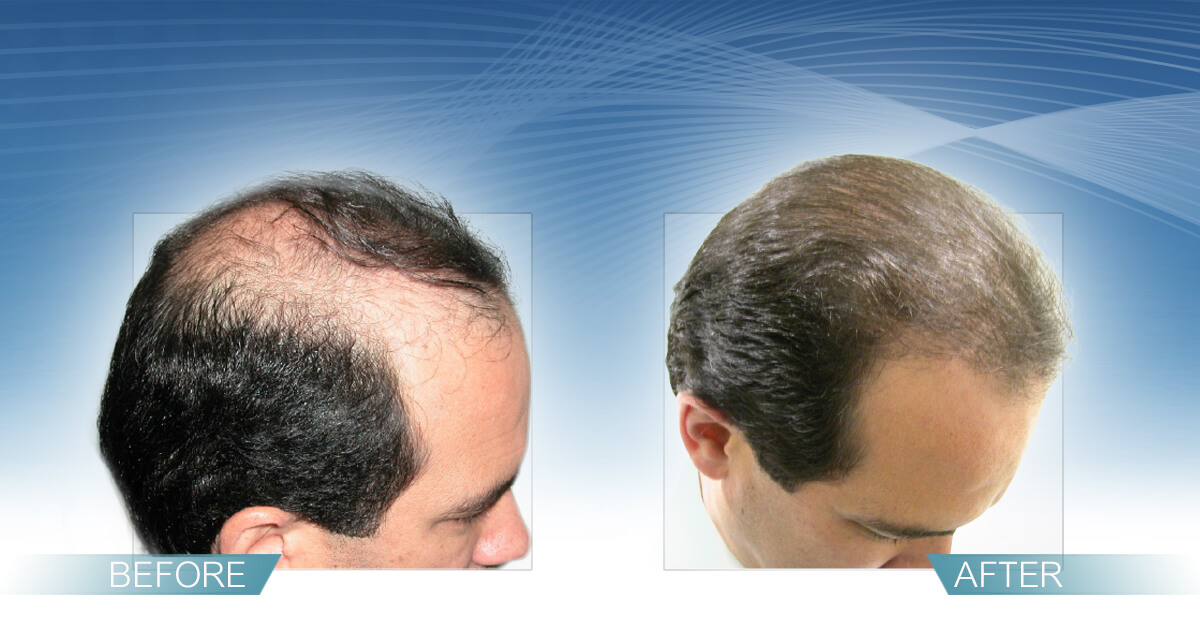 Skin & Hair Doc Before After Hair Transplant Slide 5