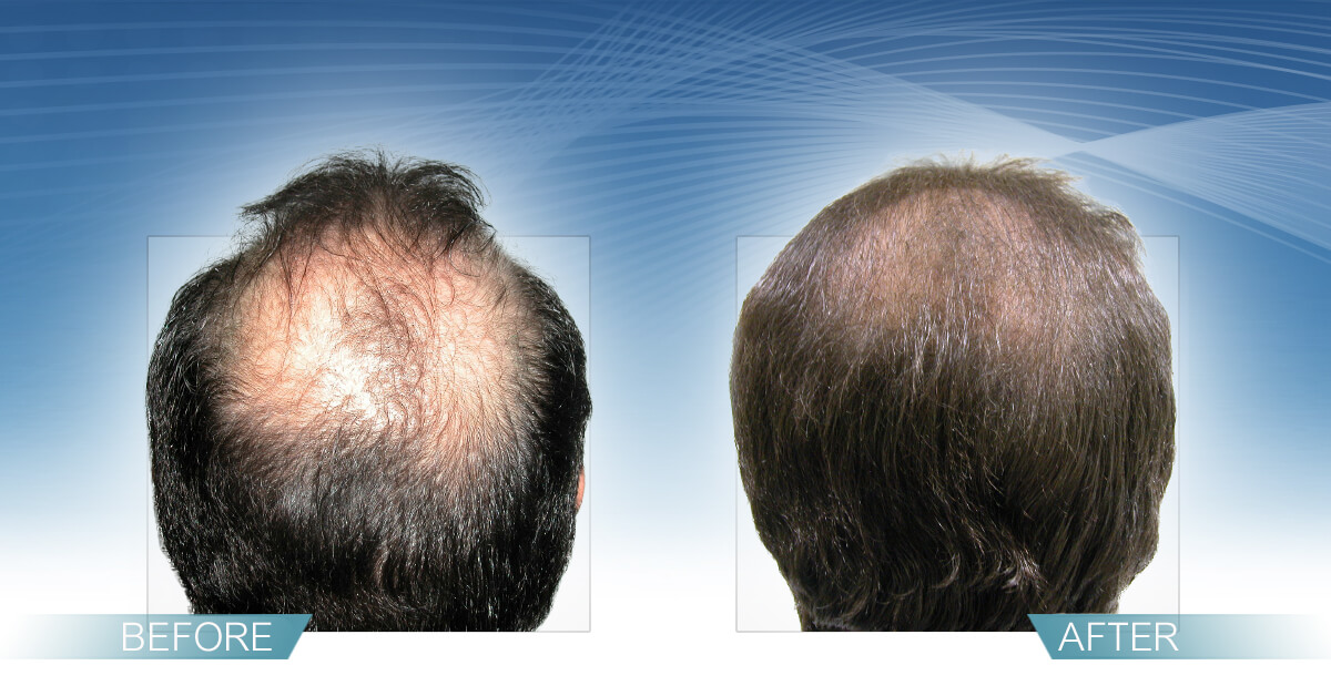 Skin & Hair Doc Before After Hair Transplant Slide 6