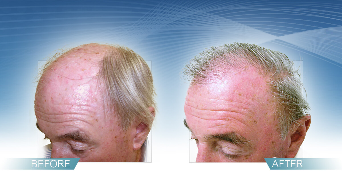 Skin & Hair Doc Before After Hair Transplant Slide 7