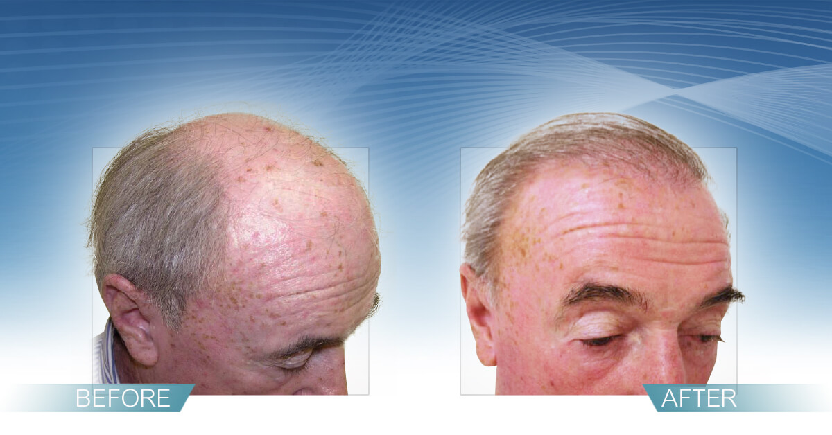 Skin & Hair Doc Before After Hair Transplant Slide 8
