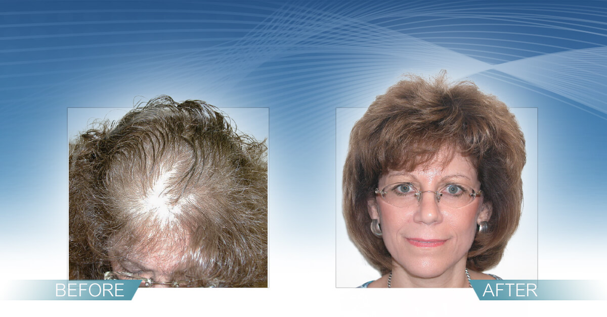 Skin & Hair Doc Before After Hair Transplant Slide 9