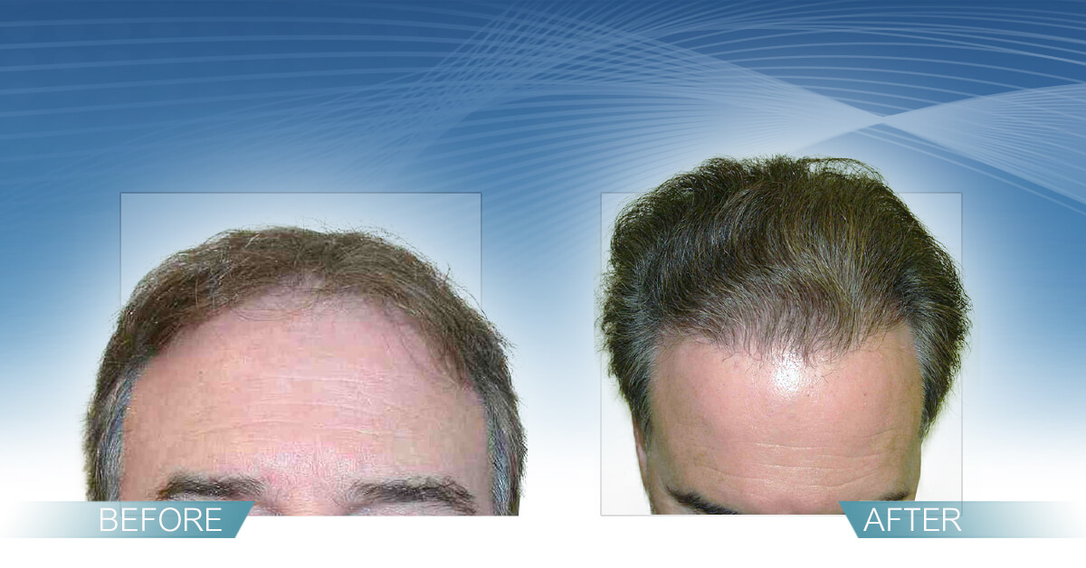 Skin & Hair Doc Before After Hair Transplant Slide 11