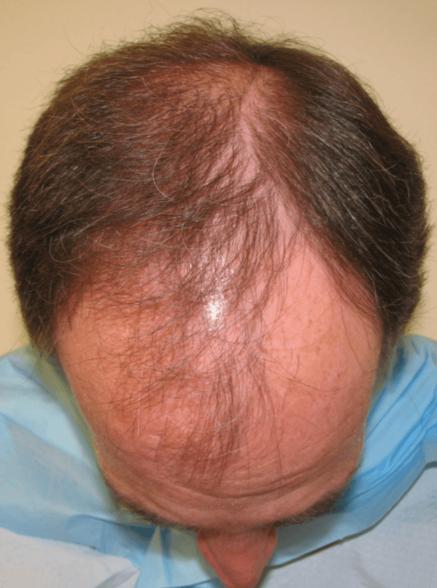 HairGrowing1