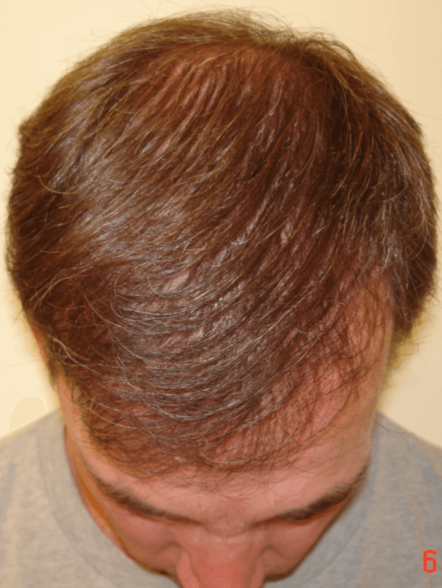 HairGrowing2