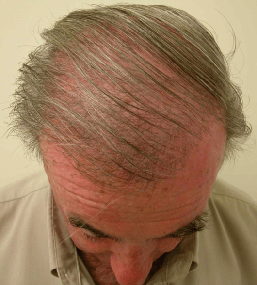 HairGrowth2