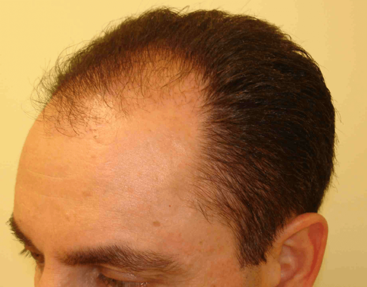 HairLossTreatment1