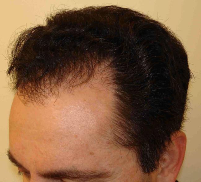 HairLossTreatment1.5