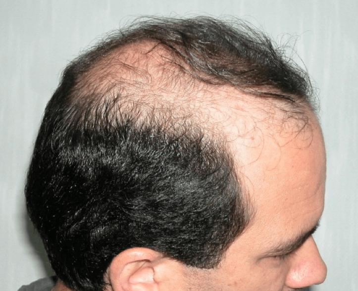 HairT1