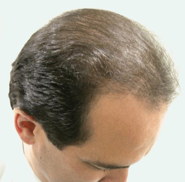 HairT2