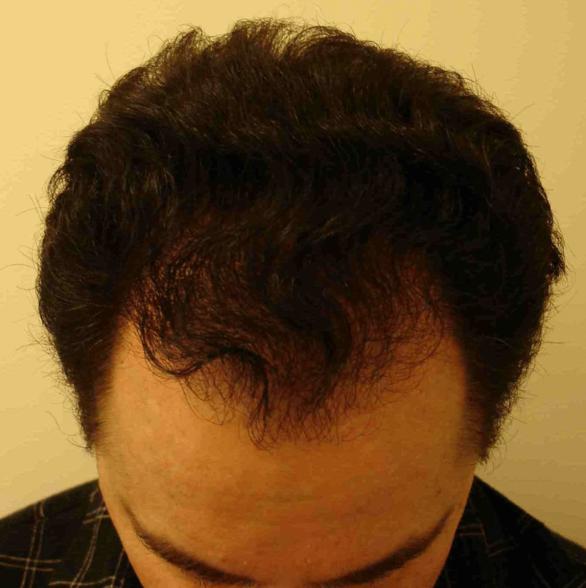 HairTransplant1.5